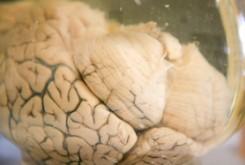 پزشکی: مولکول کوچکی که با افسردگی میجنگد