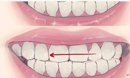 n00029625 b راهکارهایی برای توقف دندان قروچه هنگام خواب