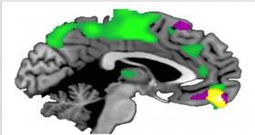 n00029810 b اعتماد کردن ساختار مغز را تغییر میدهد