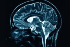 مردان سریعتر قدرت حافظه خود را از دست میدهند