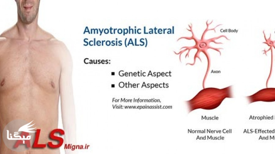 بیماری ALS چیست؟