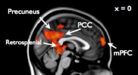 در مغز نوجواناني كه رفتارهاي پرخطر دارند، چه میگذرد؟!