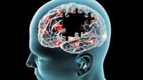 کشف عامل احتمالی بیماری آلزایمر