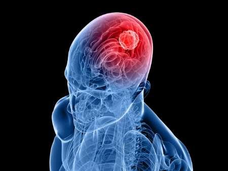 نقش افکار در رشد یک نوع تومور مغزی