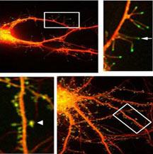 n00031210 b خاطرات چگونه در مغز شکل میگیرند؟