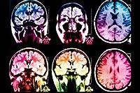 وضعیت مغز افراد مثبت ش در زندگی !