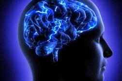 n00036399 b پیش بینی احتمال بهبود معظلات و مسائل و مشکلات تکلم بعد از سکته مغزی