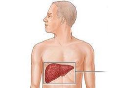 n00036437 b شناخته شدهترین راهکار درمانی کبد چرب
