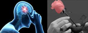 ازدواج طولانی عامل افزایش زنده ماندن بعد از سکته مغزی