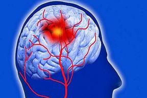 ارتباط صرع خاموش با علائم آلزایمر