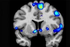 ارتباط اختلال وسواس با التهاب مغز