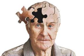 افراد آلزایمری در مقابل سرطان ریه مصون هستند