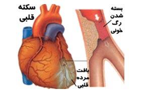 1c8f32b4f مرگ روزانه ۳۰۰ نفر در کشور به دلیل آنفارکتوس قلبی