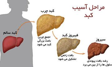 درمان «کبد چرب» با اين برنامه تغذیهای ساده