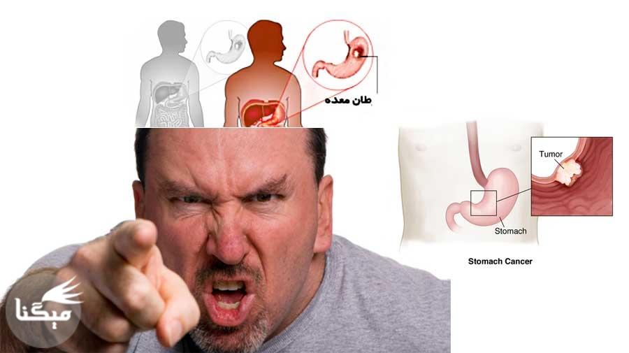 سرطان معده و روده در کمین افراد عصبی ️