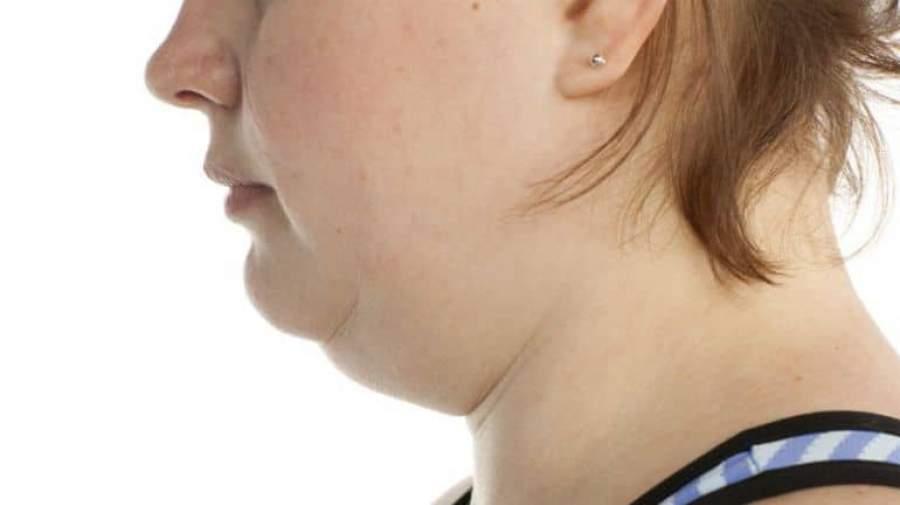 علت چاقی ناگهانی چیست؟