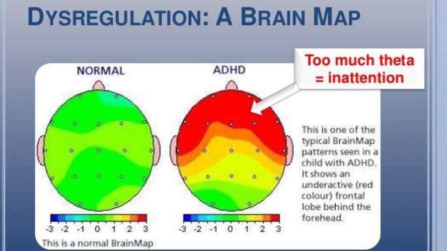 روش های تشخیص اختلال نارسایی توجه-بیش فعالی ADHD