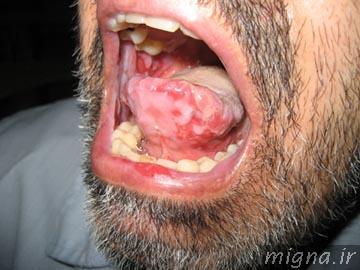 عکس از آفت دهان
